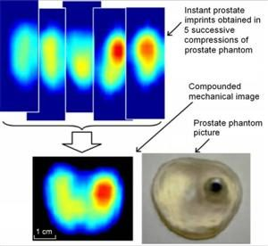 Real-time reconstruction of a 2-D image of a prostate phantom